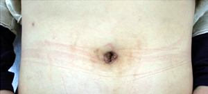 腹腔 鏡 手術 へそ